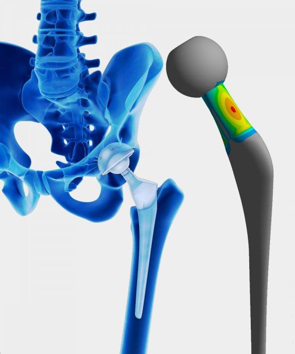 Simulation Dauerwechselfestigkeit einer Hüftprothese mit Hilfe einer FEM-Berechnung von der OptimumOne GmbH